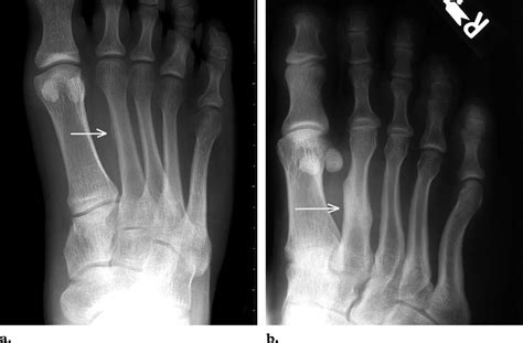 March fracture (fatigue fracture)